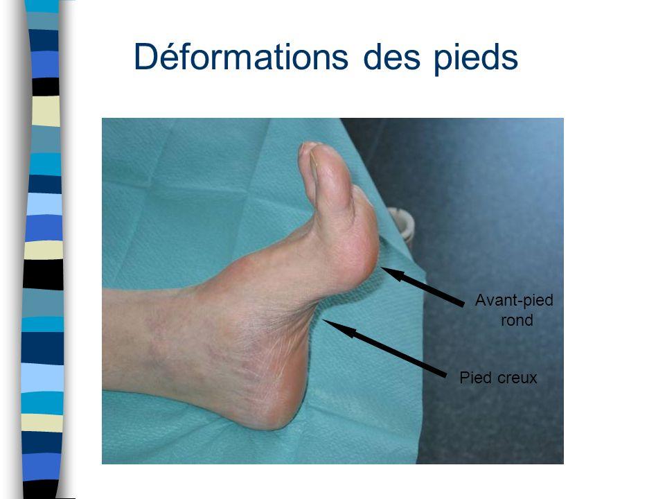 Déformations des pieds
