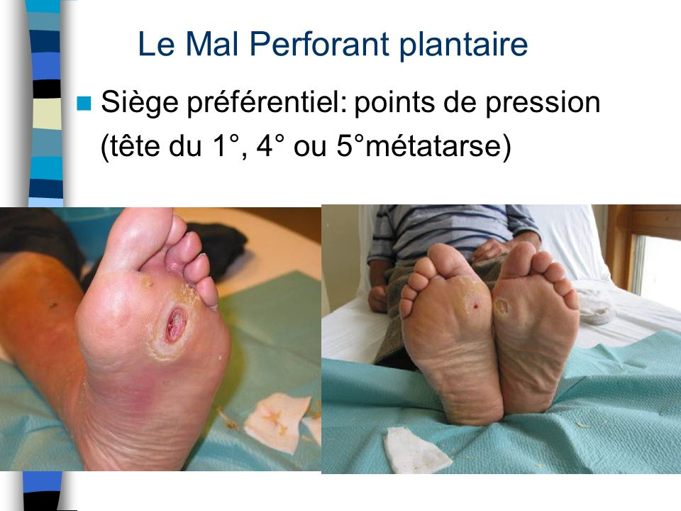 Le Mal Perforant plantaire