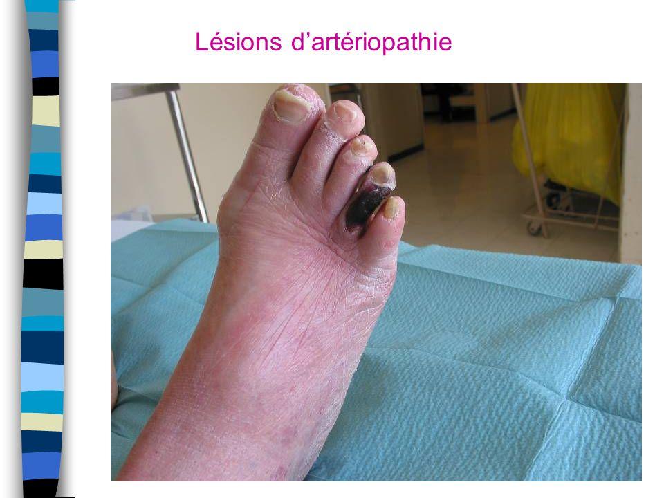 Lésions d'artériopathie