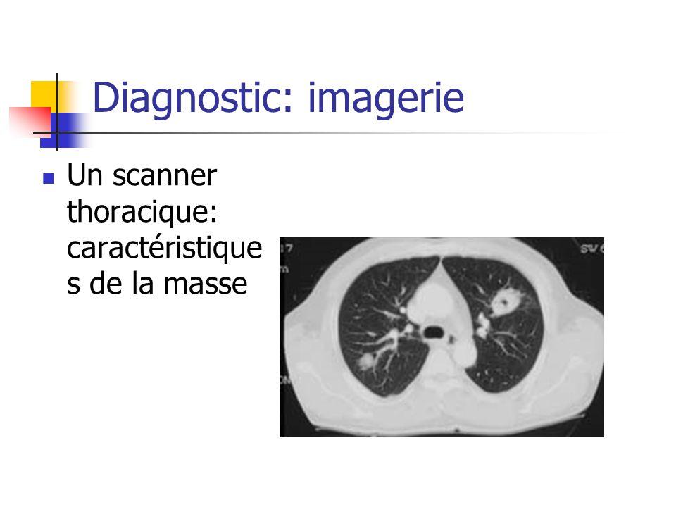Diagnostic: imagerie Un scanner thoracique: caractéristiques de la masse