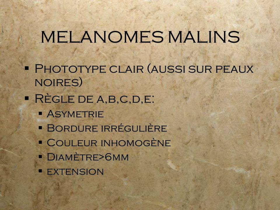 MELANOMES MALINS Phototype clair (aussi sur peaux noires)