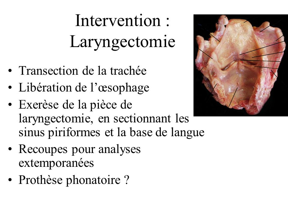 Intervention : Laryngectomie