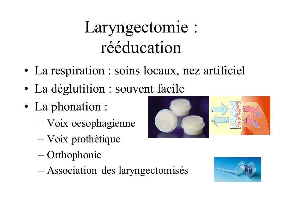 Laryngectomie : rééducation