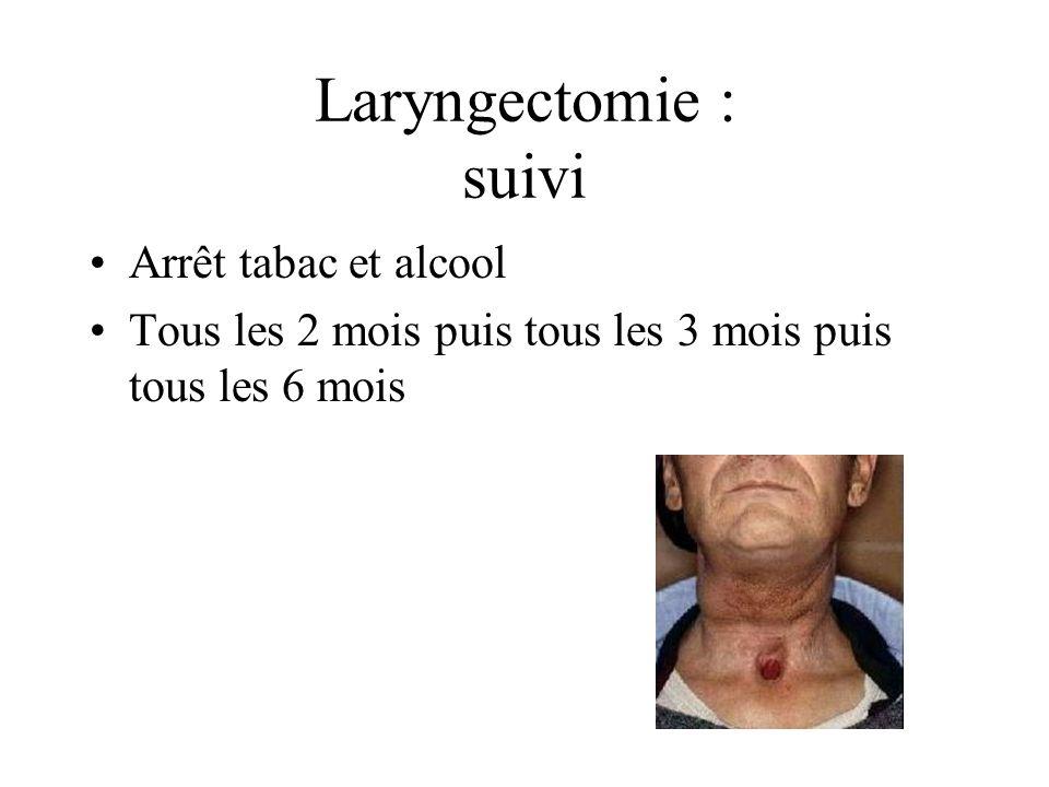 Laryngectomie : suivi Arrêt tabac et alcool