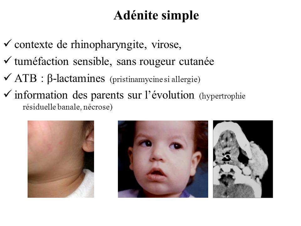 Adénite simple contexte de rhinopharyngite, virose,