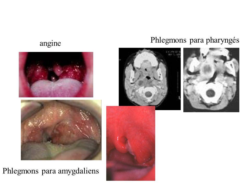 Phlegmons para pharyngés