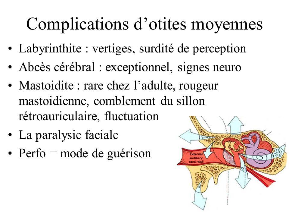 Complications d'otites moyennes