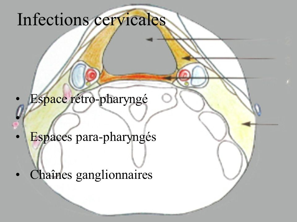 Infections cervicales