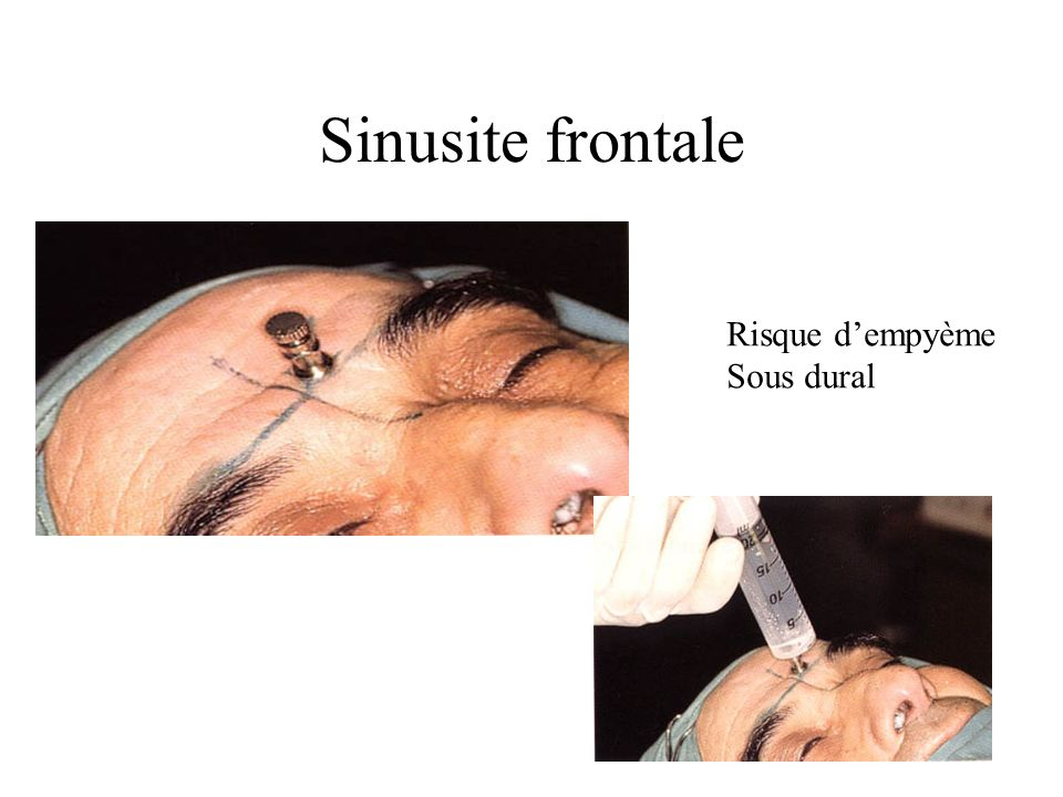 Sinusite frontale Risque d'empyème Sous dural