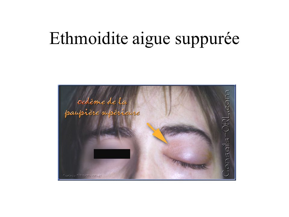 Ethmoidite aigue suppurée