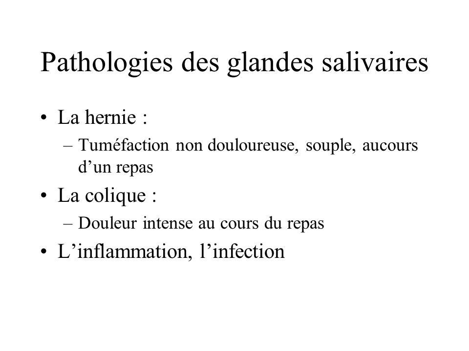 Pathologies des glandes salivaires