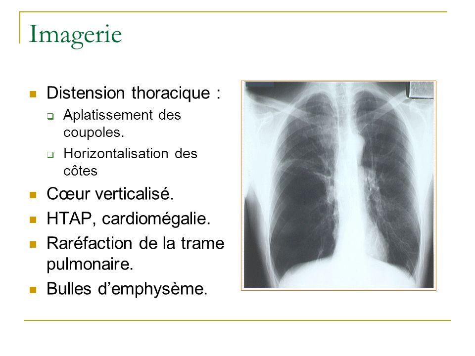 Imagerie Distension thoracique : Cœur verticalisé.