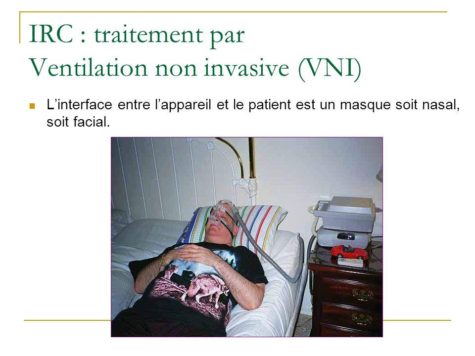 IRC : traitement par Ventilation non invasive (VNI)
