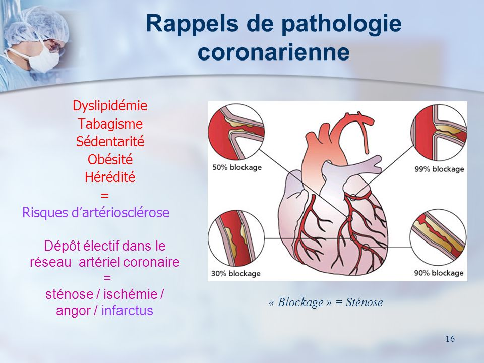 Rappels de pathologie coronarienne