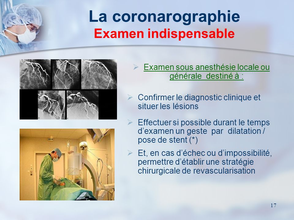 La coronarographie Examen indispensable
