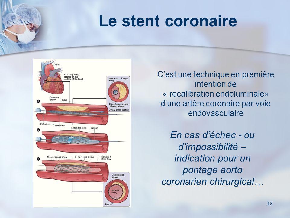 Le stent coronaire C'est une technique en première intention de « recalibration endoluminale» d'une artère coronaire par voie endovasculaire.