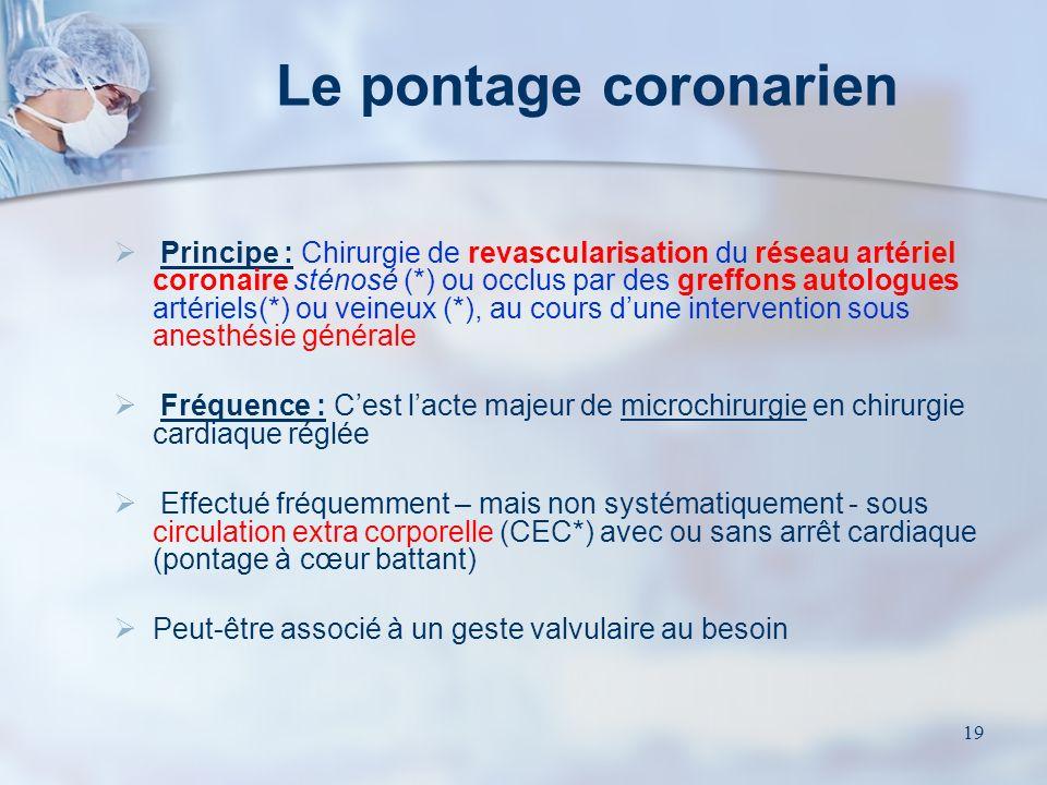 Le pontage coronarien