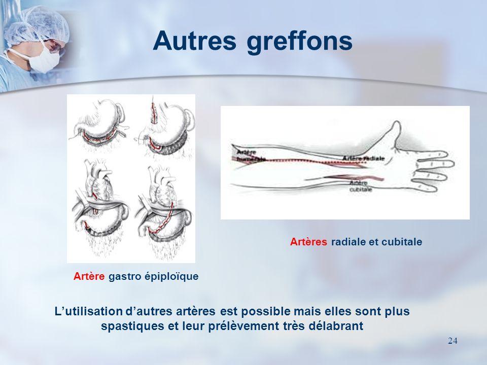 Artères radiale et cubitale Artère gastro épiploïque