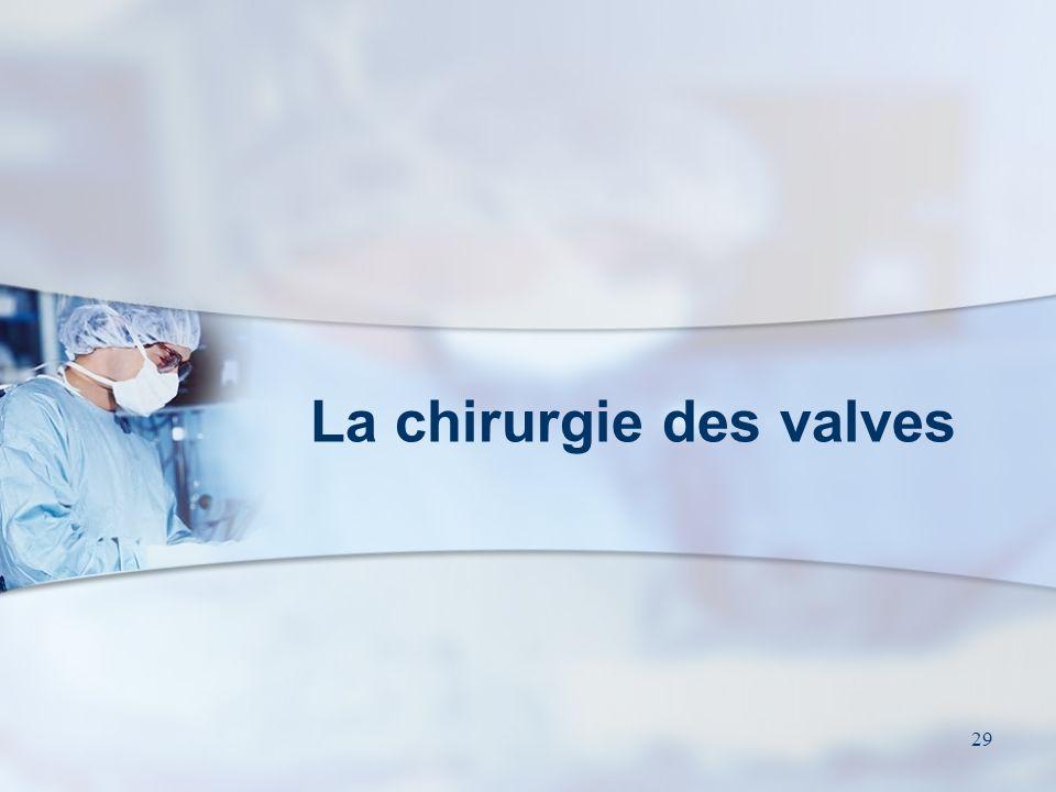 La chirurgie des valves