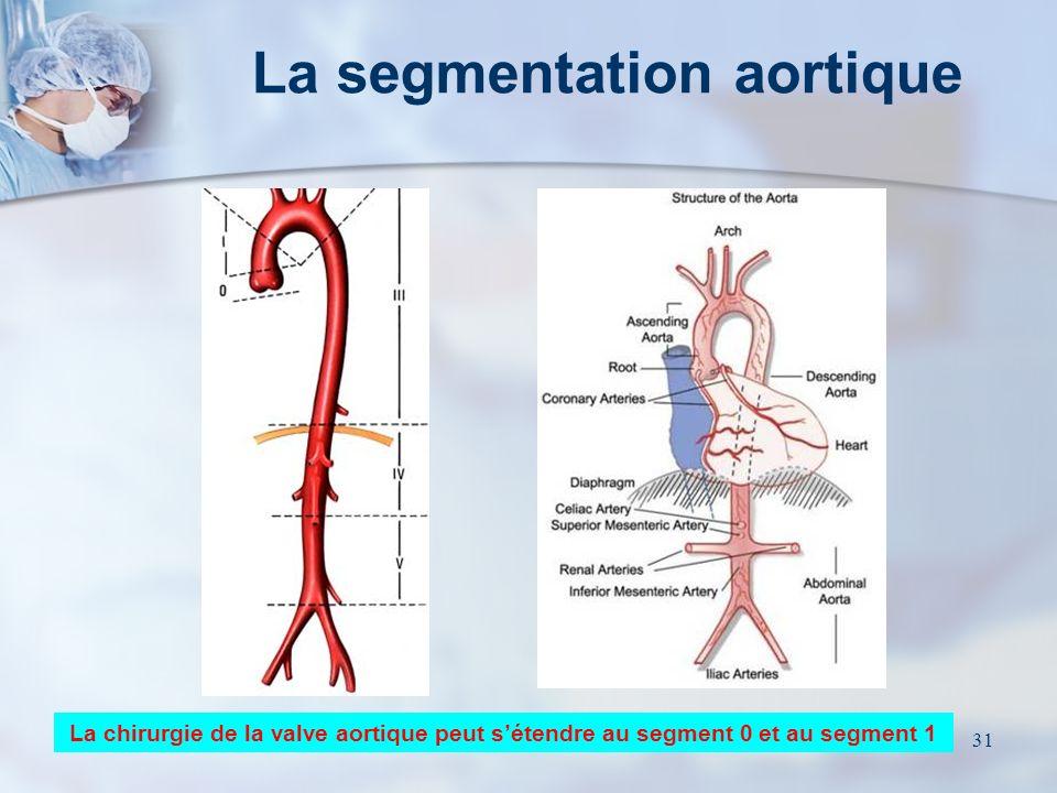La segmentation aortique
