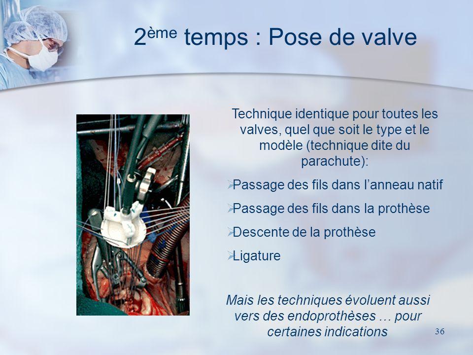 2ème temps : Pose de valve