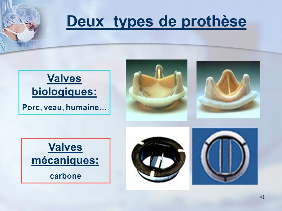 Deux types de prothèse Valves biologiques: Valves mécaniques: