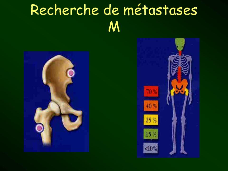 Recherche de métastases M