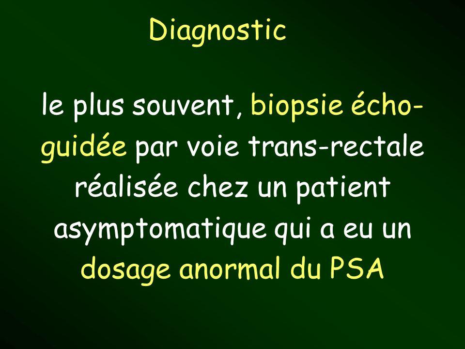 Diagnostic le plus souvent, biopsie écho- guidée par voie trans-rectale réalisée chez un patient asymptomatique qui a eu un dosage anormal du PSA.