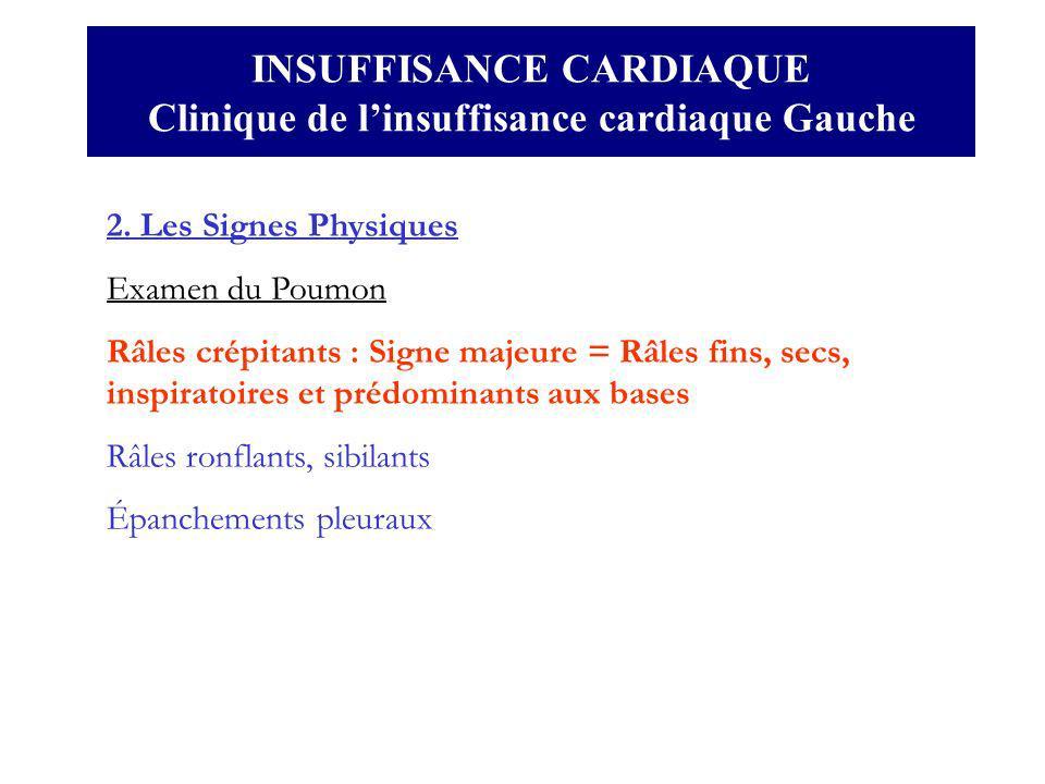 INSUFFISANCE CARDIAQUE Clinique de l'insuffisance cardiaque Gauche