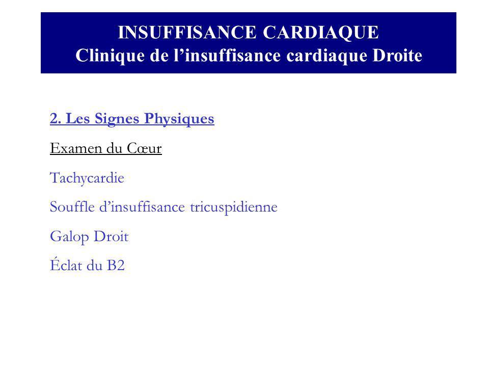 INSUFFISANCE CARDIAQUE Clinique de l'insuffisance cardiaque Droite