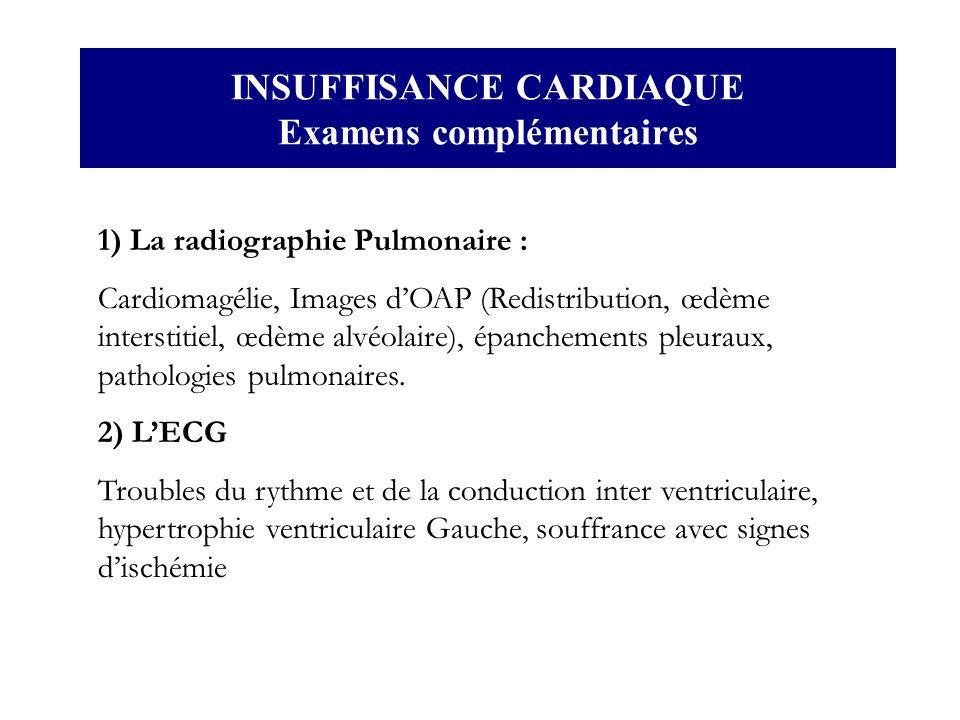 INSUFFISANCE CARDIAQUE Examens complémentaires