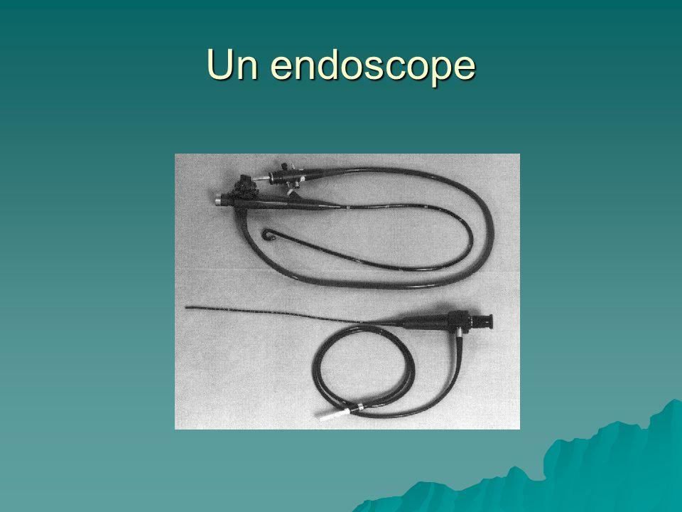 Un endoscope