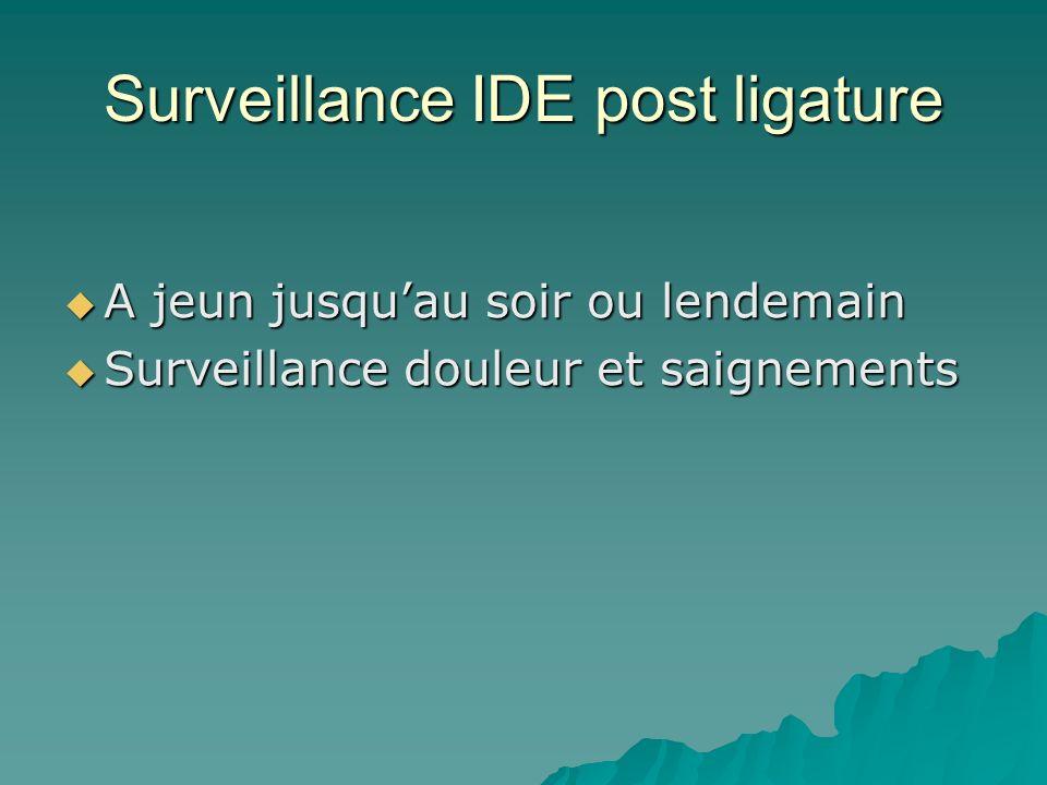 Surveillance IDE post ligature