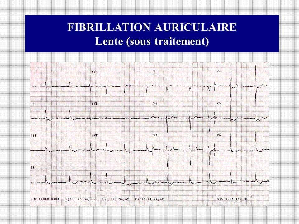 FIBRILLATION AURICULAIRE Lente (sous traitement)