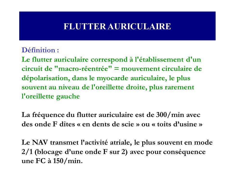 FLUTTER AURICULAIRE Définition :