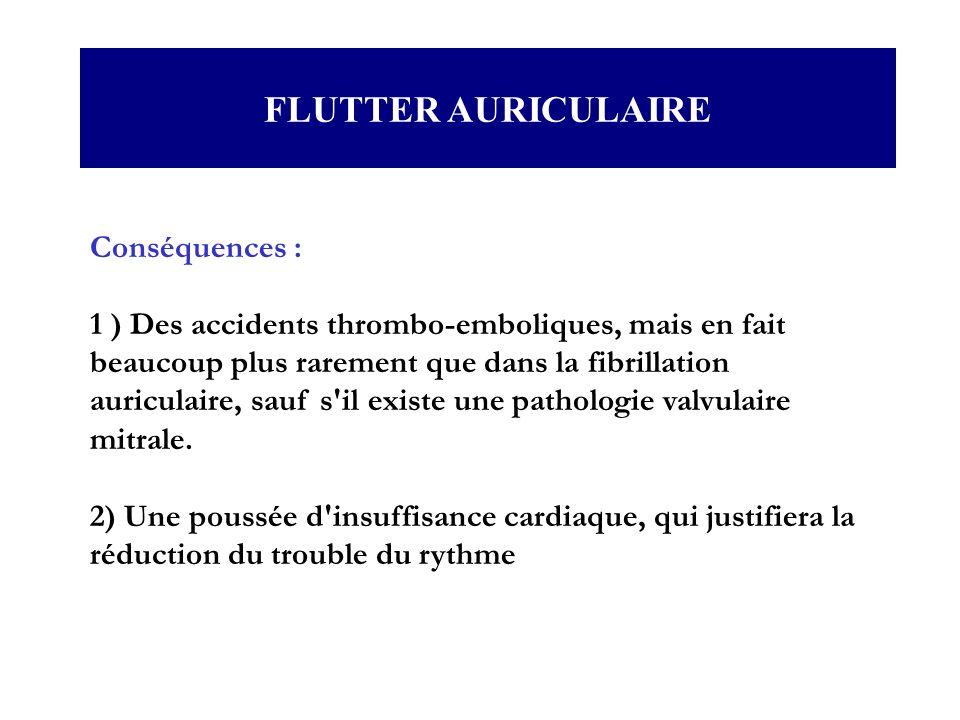 FLUTTER AURICULAIRE Conséquences :