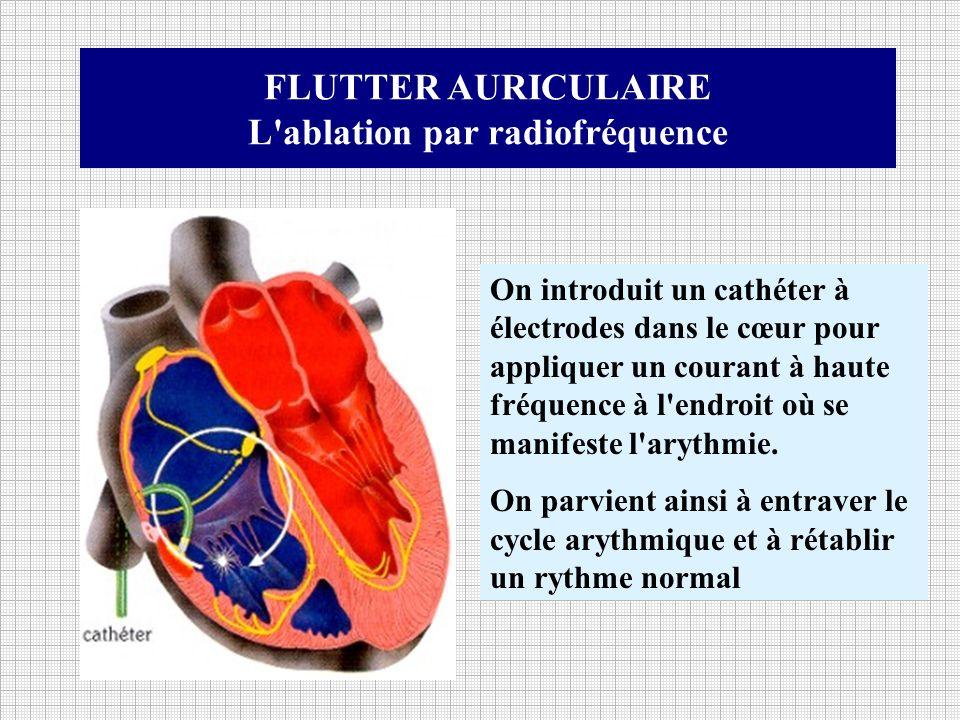 L ablation par radiofréquence
