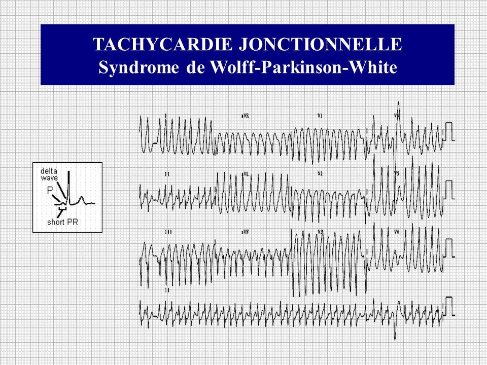TACHYCARDIE JONCTIONNELLE Syndrome de Wolff-Parkinson-White