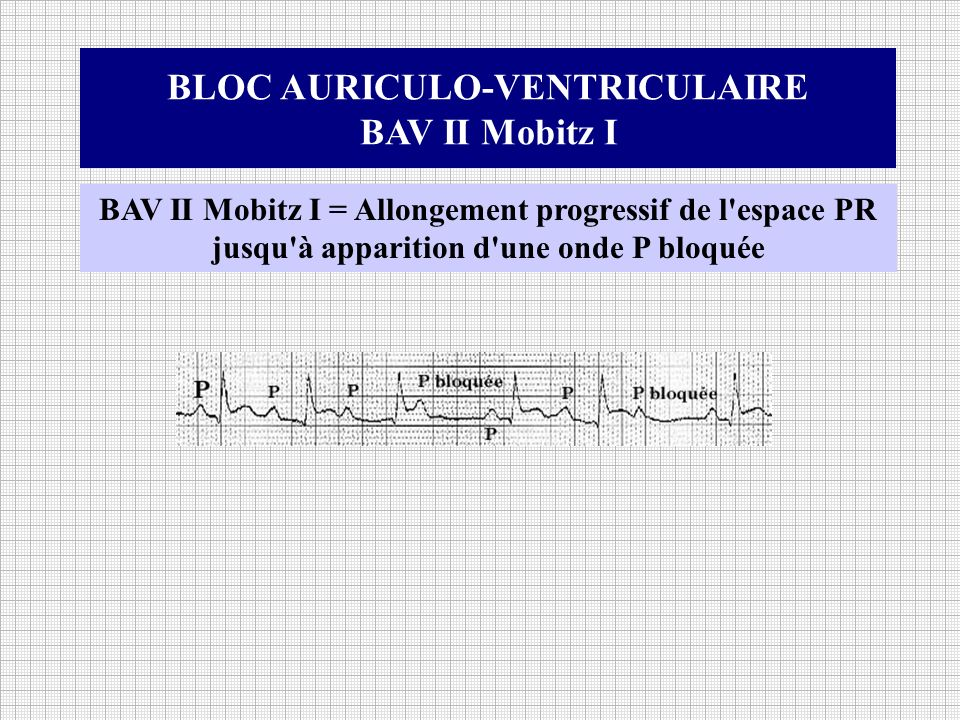 BLOC AURICULO-VENTRICULAIRE