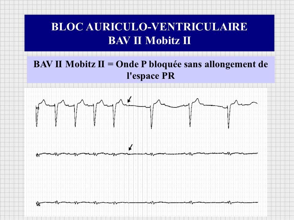 BLOC AURICULO-VENTRICULAIRE BAV II Mobitz II