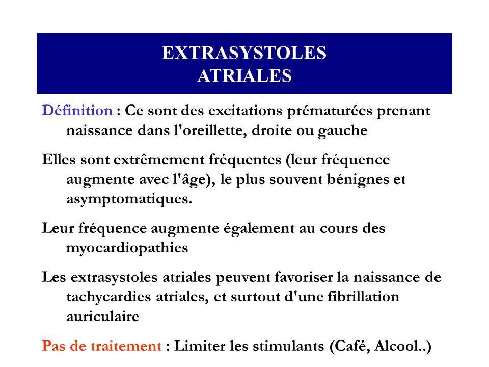 EXTRASYSTOLES ATRIALES