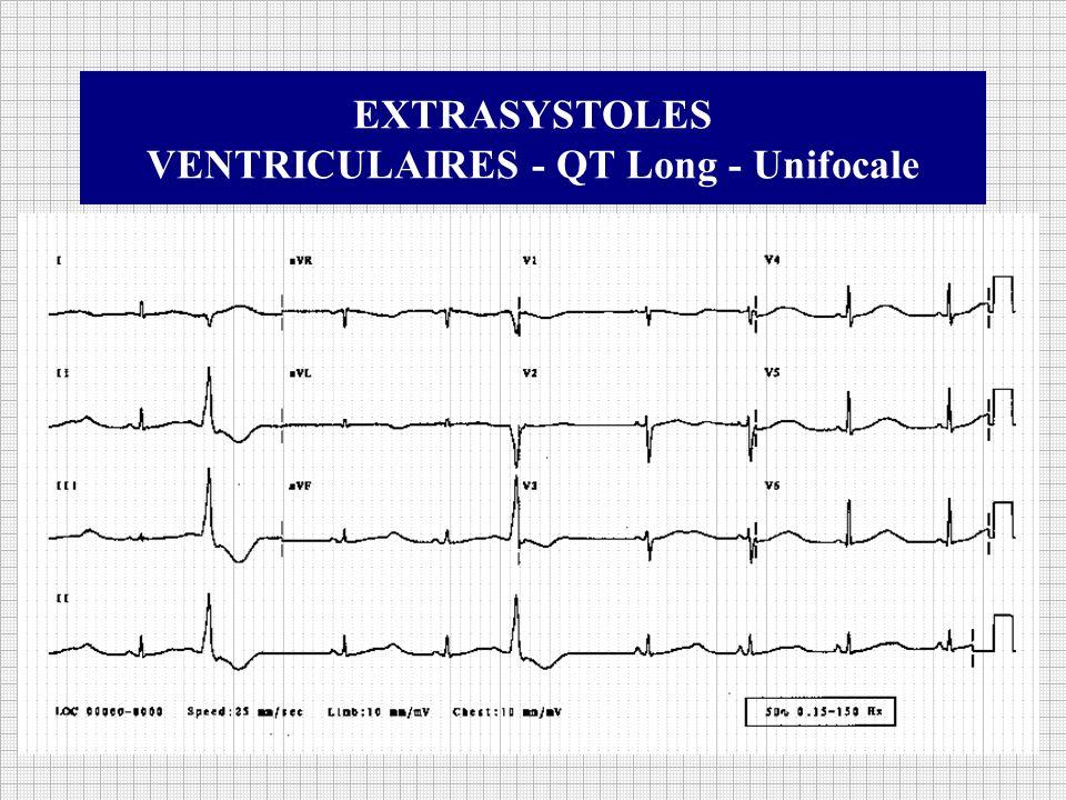 VENTRICULAIRES - QT Long - Unifocale