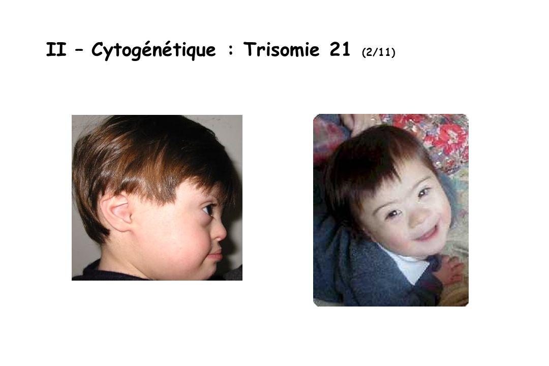 II – Cytogénétique : Trisomie 21 (2/11)