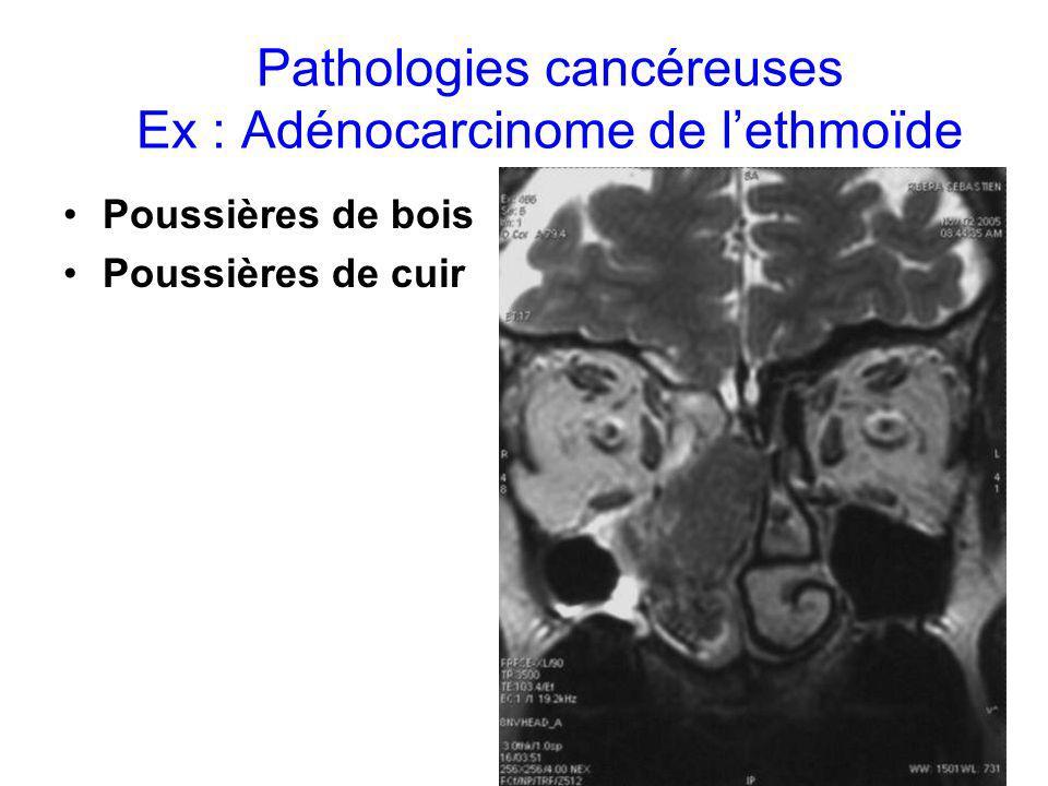Pathologies cancéreuses Ex : Adénocarcinome de l'ethmoïde