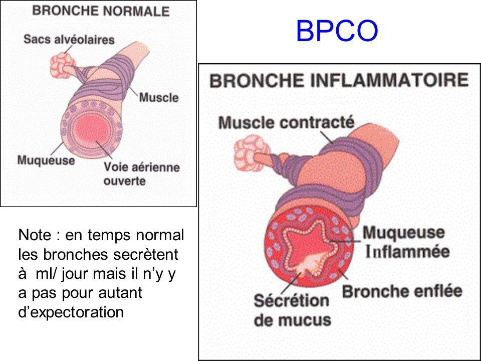 BPCO Note : en temps normal les bronches secrètent à ml/ jour mais il n'y y a pas pour autant d'expectoration.