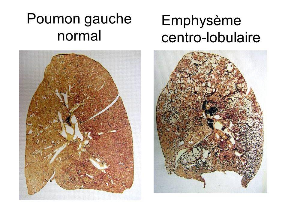 polluants respiratoires