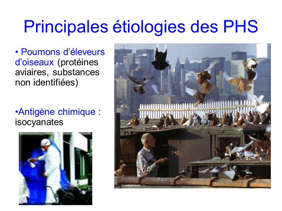 Principales étiologies des PHS
