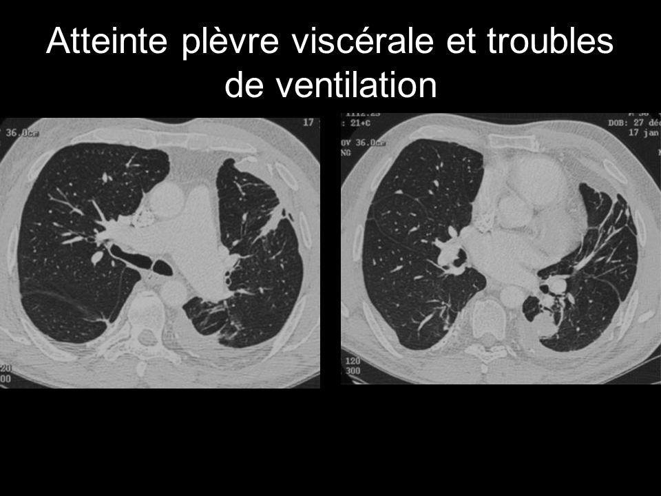 Atteinte plèvre viscérale et troubles de ventilation