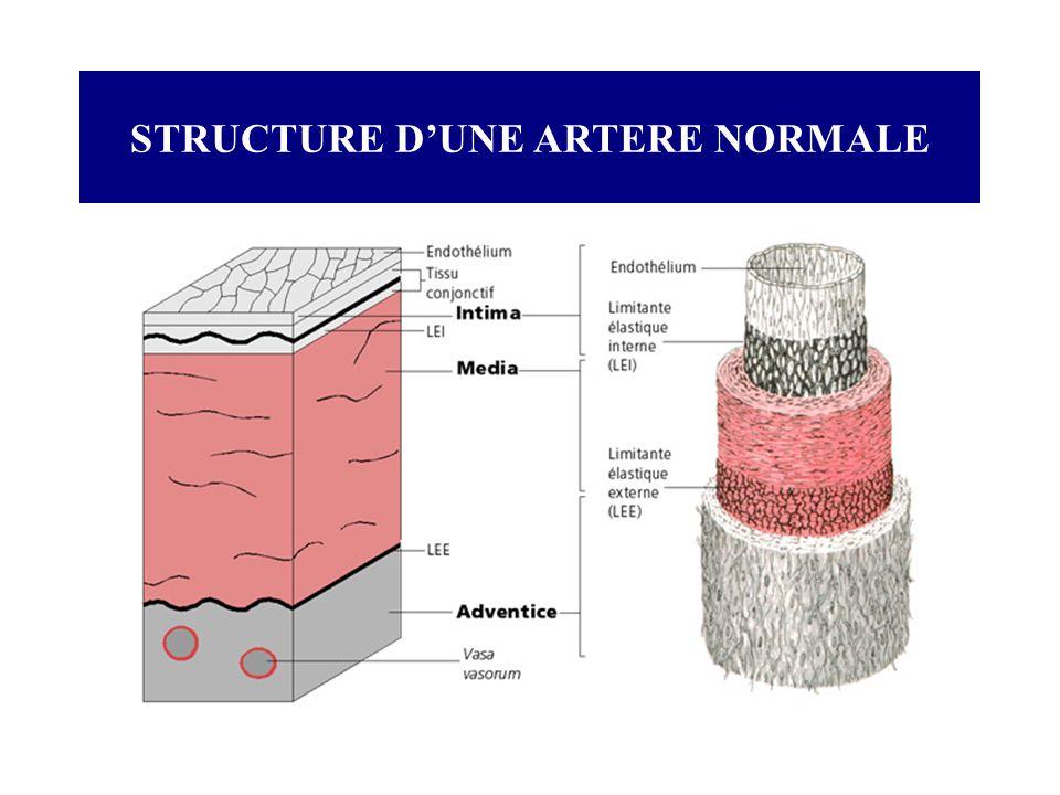 STRUCTURE D'UNE ARTERE NORMALE