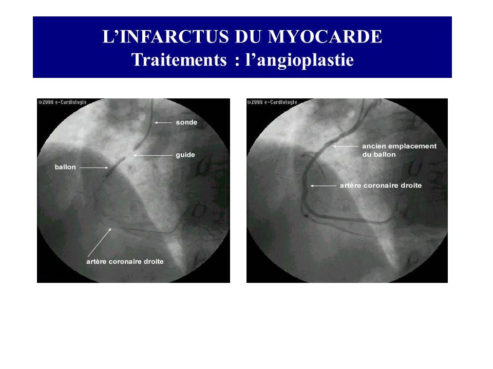 L'INFARCTUS DU MYOCARDE Traitements : l'angioplastie